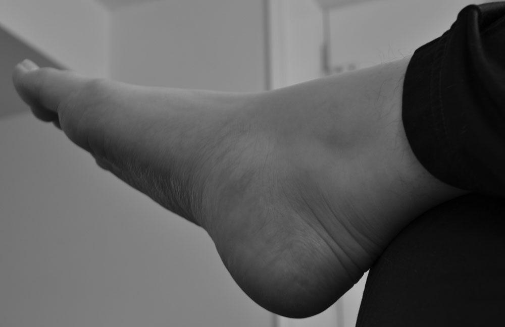 Illaluktande fötter